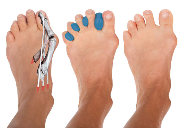 Joy-a-Toes :: Yoga Toe Spreaders :: Feet, correction